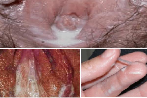 hình ảnh bệnh lậu ở vùng kín nữ giới