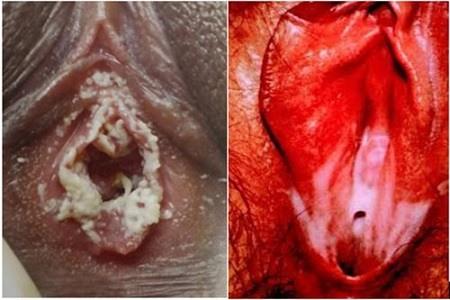 hình ảnh bộ phận sinh dục nữ mắc bệnh lậu